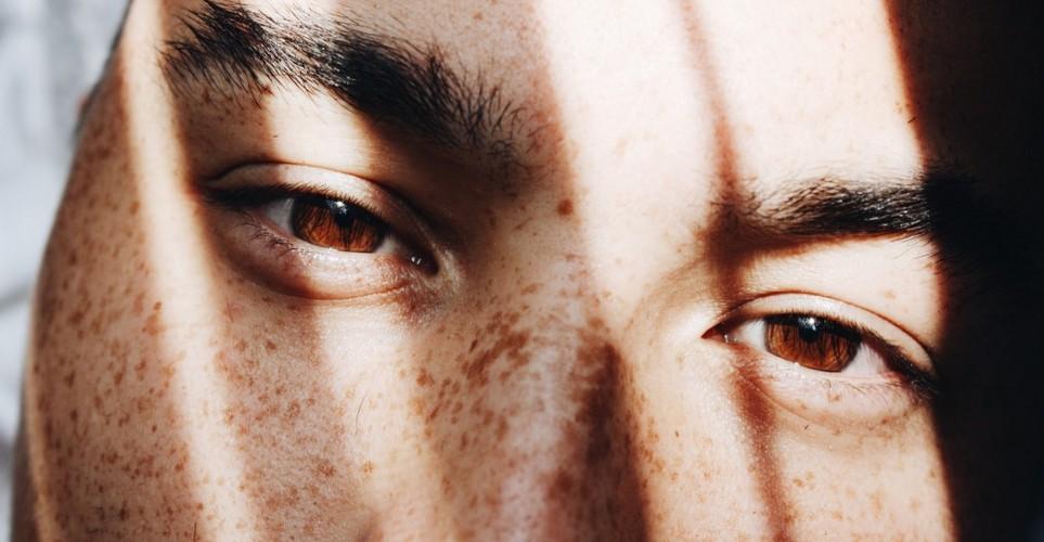 Όλα όσα χρειάζεται να ξέρεις για τα fillers κάτω από τα μάτια