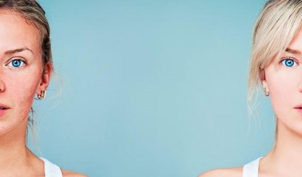 Τι είναι η ροδόχρους ακμή και πώς μπορείς να την αντιμετωπίσεις
