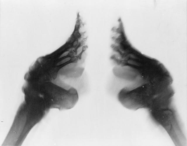 679426_Bound_feet_-X-ray-