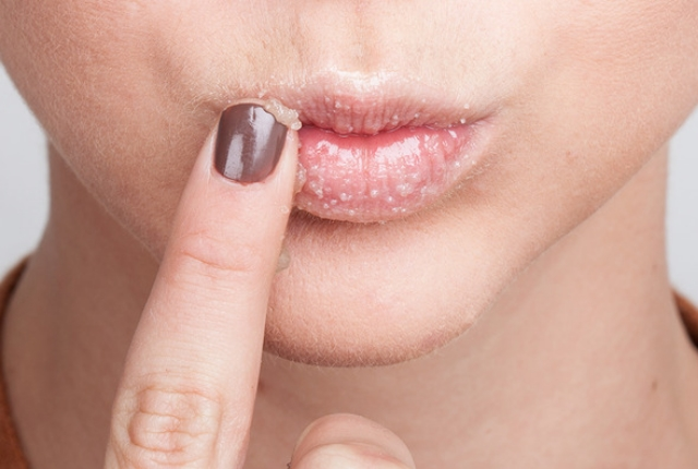 DIY scrub για τα χείλη: ενυδατωμένα, υγιή χείλη όλον τον χειμώνα