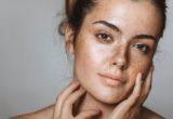 Πώς θα καλύψεις με τα σωστά βήματα σπυράκια και σημάδια ακμής στο μακιγιάζ σου